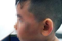 Cháu bé bị đánh bầm mặt vì nghi trộm gà trong chung cư