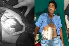 Thủng dạ dày 4 ngày không biết, người đàn ông suýt thối hết nội tạng