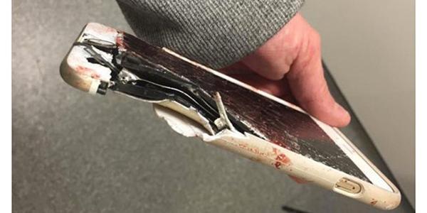 Điện thoại phát nổ ngay trên ngực, thanh niên 21 tuổi nhập viện nguy kịch