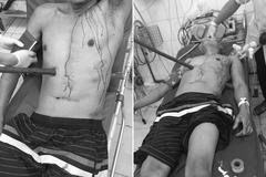 Bác sĩ căng thẳng rút cọc gỗ 1m xuyên qua người đàn ông Quảng Ninh