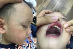 Cô giáo tát bé 3 tuổi bầm mặt
