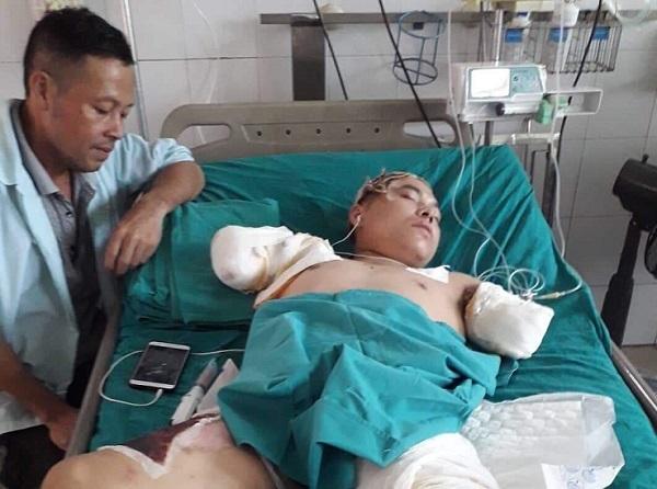 Tương lai mịt mờ của cậu thanh niên bị bỏng điện cắt cụt 2 cánh tay