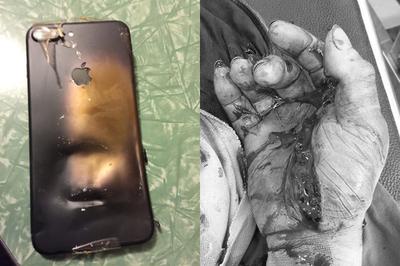 Vừa lướt điện thoại vừa sạc, iPhone phát nổ nát tay người đàn ông