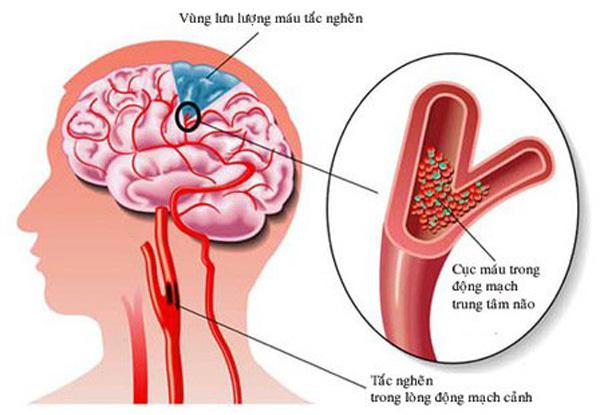 Cảnh báo 7 dấu hiệu sớm của đột quỵ, giúp bạn thoát chết trong gang tấc