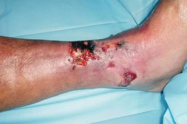 7 thay đổi trên da, càng để lâu càng nguy hiểm đến tính mạng