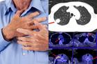 Nghiện 'sát thủ số 1', người đàn ông phát hiện ung thư phổi giai đoạn cuối