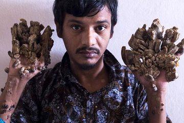 """""""Người cây"""" Bangladesh cầu xin được cắt cụt tay"""