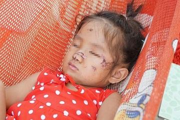 Bé gái 2 tuổi ở Tây Ninh bị chó hoang lao vào sân nhà cắn nát mặt
