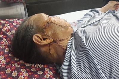 Phẫu thuật ghép da mặt cho cụ bà 95 tuổi bị ung thư da