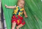 Xót thương bé song sinh qua nhiều lần mổ tim mới giữ được tính mạng