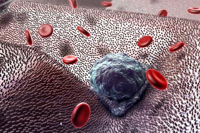 Dùng vitamin theo cách này là ngầm giúp tế bào ung thư di căn khắp cơ thể