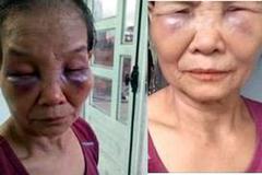 Bình Phước: Con dâu mới sinh 3 tháng, đánh mẹ chồng tím mặt