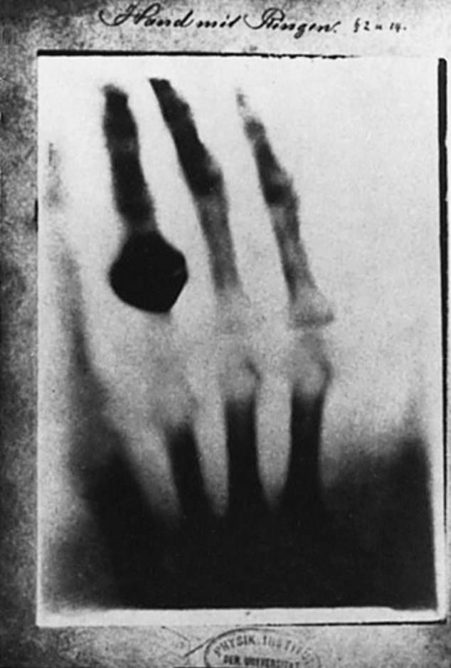 Sự thật cay đắng phía sau tấm ảnh chụp X-quang đầu tiên trên thế giới