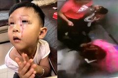Bà hoảng hồn chứng kiến cháu trai bị chó tấn công trong thang máy chung cư