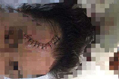 Truy tìm ô tô CX5 tông trọng thương cô gái rồi bỏ chạy ở Hà Nội