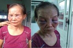 Con dâu đánh mẹ chồng ở Bình Phước bị phạt 2 triệu, tiết lộ thêm câu chuyện