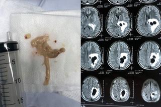 Quý ông bị sán làm tổ trong não vì mê mẩn món khoái khẩu của triệu người