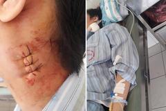 BV Bạch Mai, Bệnh nhiệt đới lên tiếng khi bị tố mổ nhầm cho bé trai