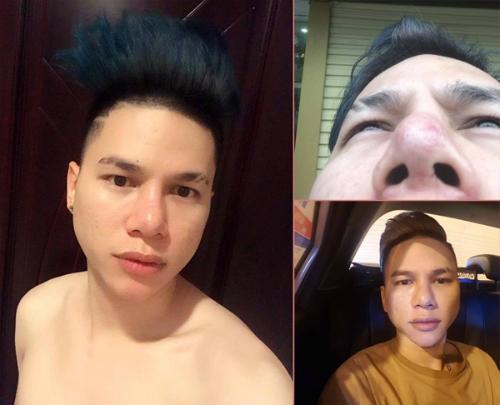 Sao nam Việt phẫu thuật thẩm mỹ: Người gây tiếc nuối, kẻ lột xác khó tin