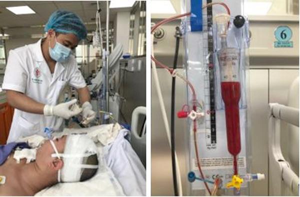 Đột ngột đau đầu, thiếu nữ 18 rơi vào hôn mê do 'kẻ giết người' thứ 3 ở VN
