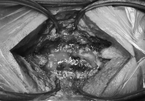 Người phụ nữ đột ngột liệt nửa người sau khi đi giác hơi, bấm huyệt