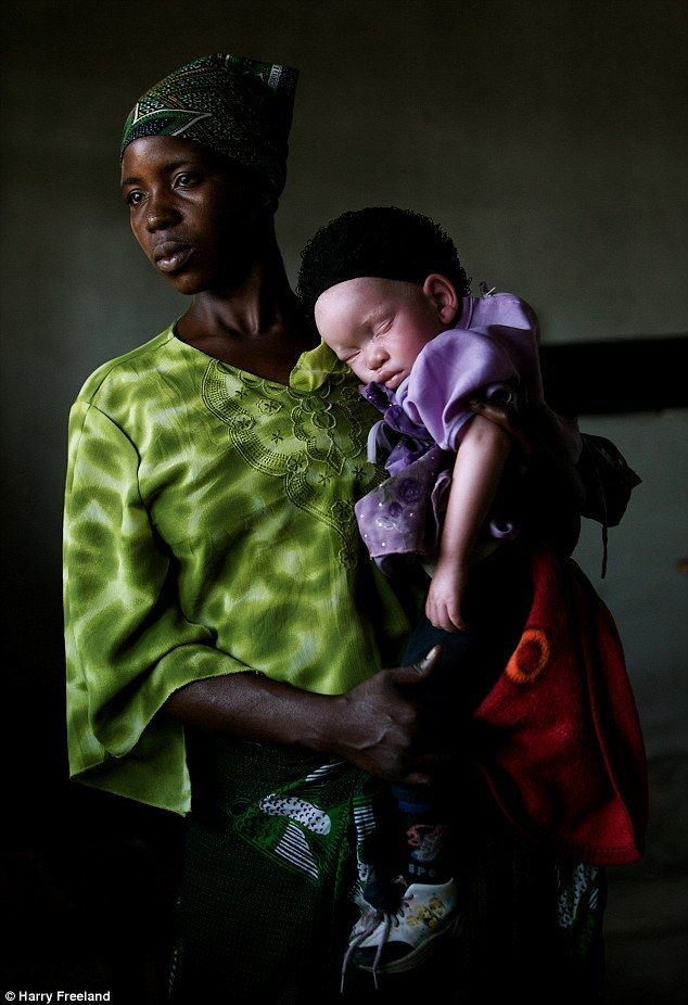 Nạn săn người bạch tạng ở châu Phi mỗi mùa bầu cử