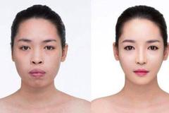 Nữ sinh Cảnh sát và các cô gái 'lột xác' sau khi phẫu thuật thẩm mỹ