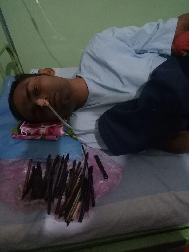 Ấn Độ,bệnh viện,rối loạn ăn uống,vật thể,sắc nhọn,dao,tua vít,tâm thần,bệnh nhân