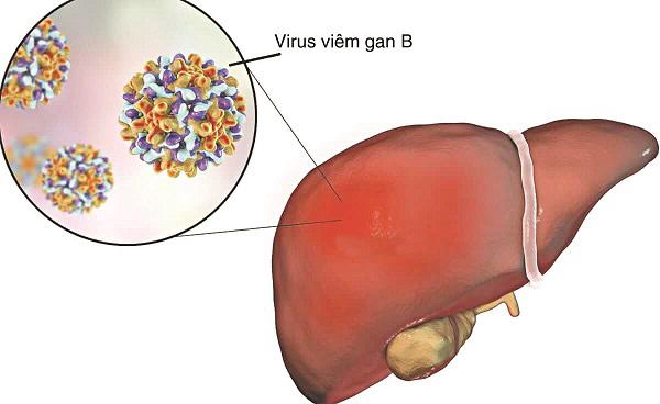 Chẩn đoán và điều trị viêm gan B theo hướng dẫn mới nhất của Bộ Y tế