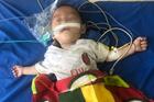 Bé trai 1 tuổi tím tái, ngừng thở vì ngộ độc thuốc phiện