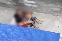 Cụ bà 77 ở Hà Nội bị chó nhà cháu ngoại cắn điên cuồng