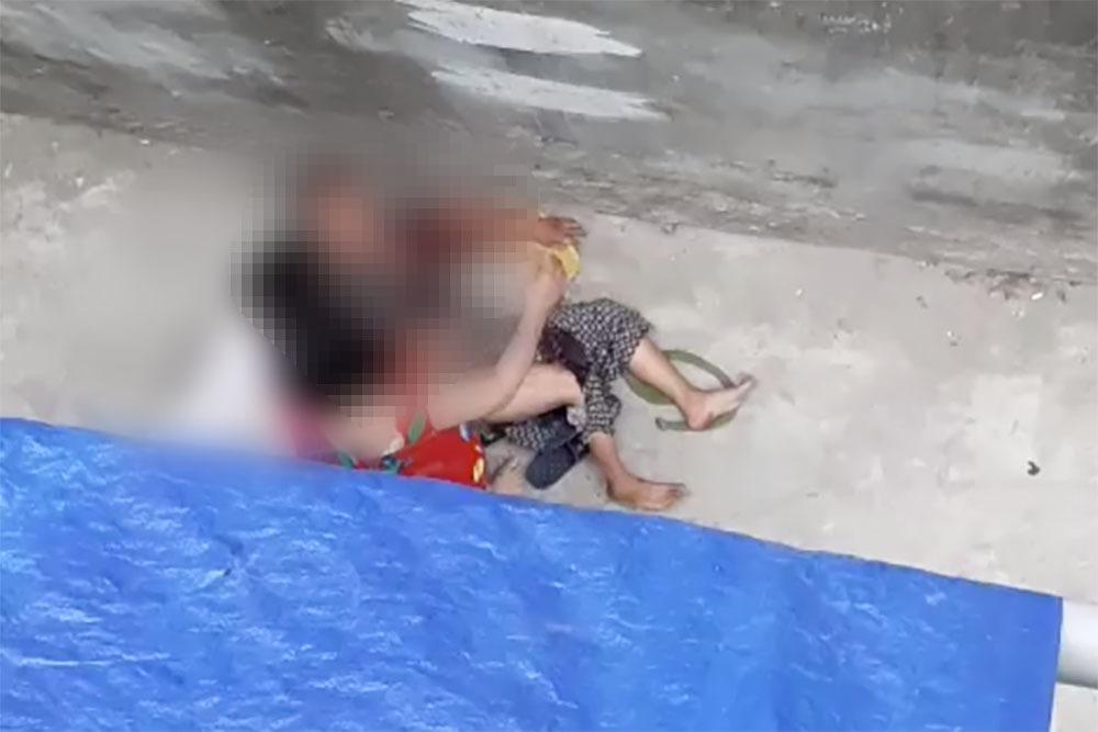 Cụ bà 76 ở Hà Nội bị chó nhà cháu ngoại cắn điên cuồng