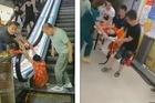 Liều đi thang máy hỏng, khách bị nghiến hai chân