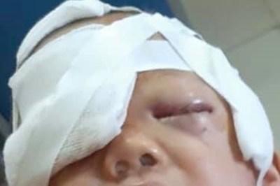 Bé trai 20 tháng tuổi bị gãy xương mũi do chó nhà tấn công