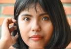 Trúng đại học, nữ sinh có đôi mắt 2 màu chọn cao đẳng