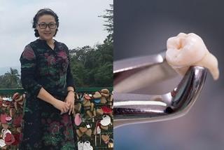 Người phụ nữ vừa chữa khỏi ung thư nhưng lại qua đời vì nhổ răng khôn