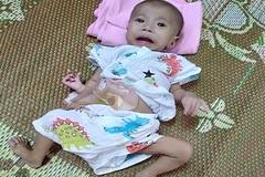 Tiếng khóc xé lòng của bé trai 4 tháng tuổi mắc nhiều căn bệnh bẩm sinh