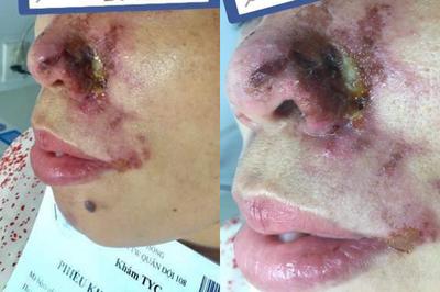 Người phụ nữ Hà Nội bị thối mũi, chảy mủ sau tiêm filler