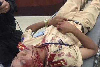 Đại úy CSGT Hà Nội bị người vi phạm đánh nhập viện