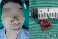 Tẩy nốt ruồi lại mọc, người đàn ông phải khoét mũi vì ung thư