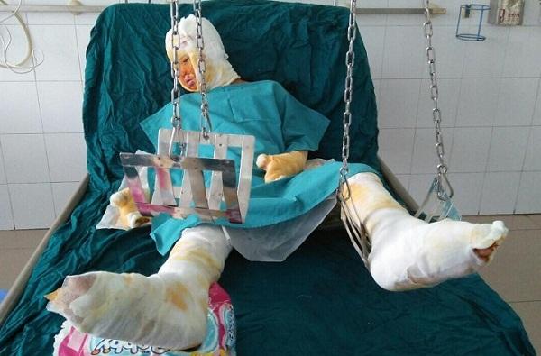 Xin cứu bé gái còn sống trong vụ tẩm xăng đốt cả gia đình ở Sơn La