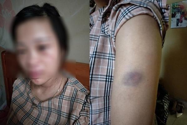 Vợ mang thai 8 tháng bị chồng đánh, mẹ vợ lên tiếng