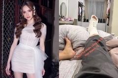 Hương Giang khiến fan lo lắng với hình ảnh chân bó bột