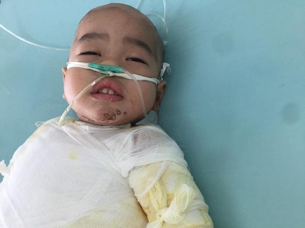 Thương bé trai 2 tuổi ngã vào nồi nước đậu đang sôi nguy kịch tinh mạng