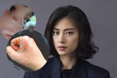 Ngô Thanh Vân bầm dập, chấn thương khi đóng phim ở nước ngoài