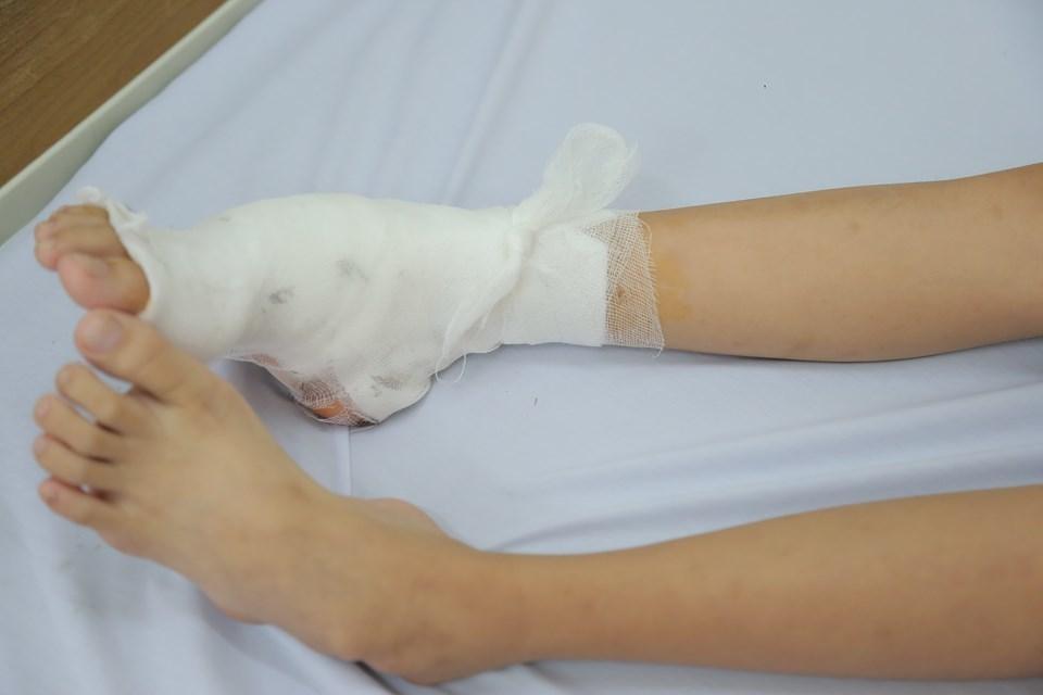 biến dạng bàn chân,dị tật bẩm sinh