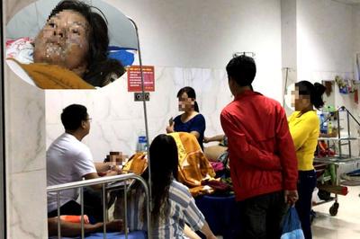 Gã chồng hờ đổ xăng thiêu sống vợ ở Đắk Lắk