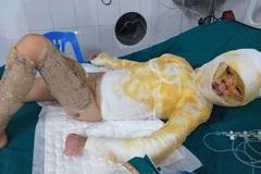 Xót thương bé gái bị bỏng cồn toàn thân nguy kịch tính mạng