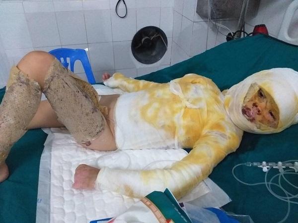Hoàn cảnh khó khăn,Bỏng Cồn,Từ thiện VietNamNet