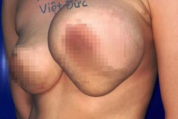 Ngực cô gái trẻ to gấp 4, suýt nổ sau khi nâng ngực ở thẩm mỹ viện